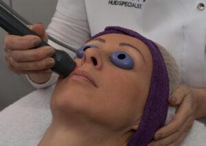 Pascaud laser voor onmiddelijke huidverstrakking bij Huidinstituut Marjon Laheij Klimmen